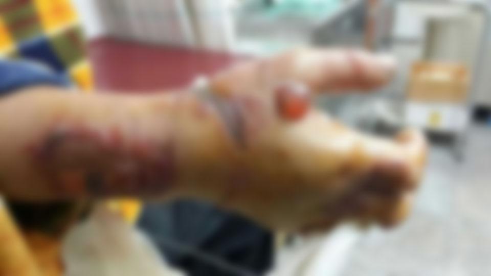 ▲ 장시간 뒷수갑 착용으로 부상당한 김 씨의 오른손.