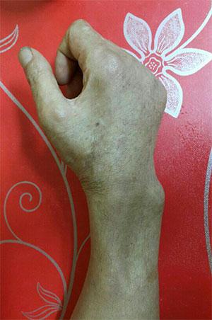 ▲ 현재 김씨의 오른손. 손목 윗부분 근육이 점점 사라지고 있다.